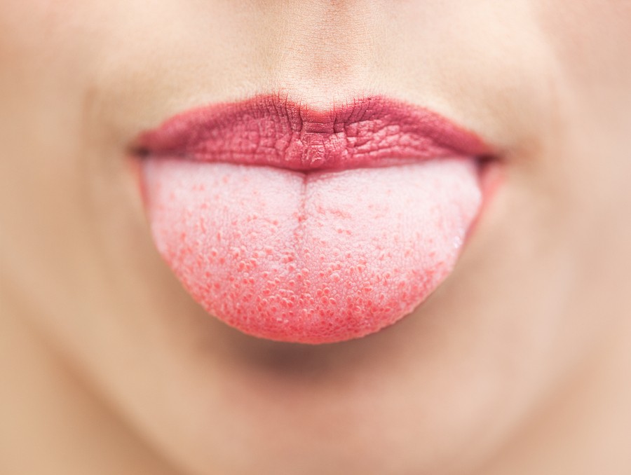 Tongue health